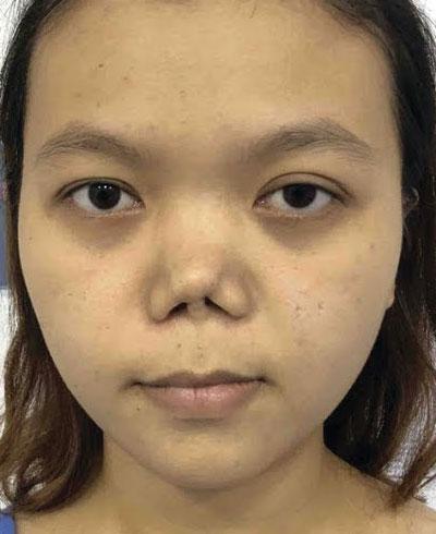 Hình ảnh khách hàng mũi bị hỏng do thẩm mỹ
